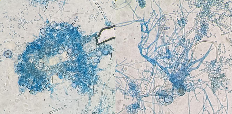 Hülle cells